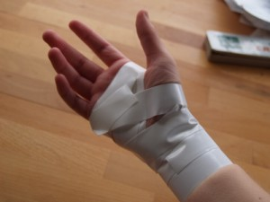 Hand and Wrist Work Injuries